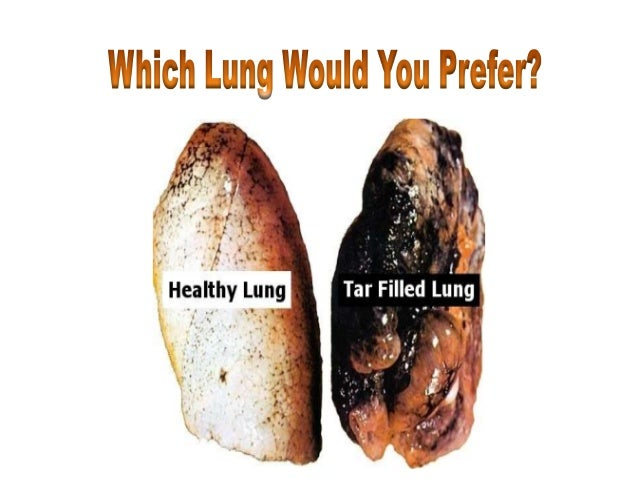 how to clear your lungs after quitting smoking