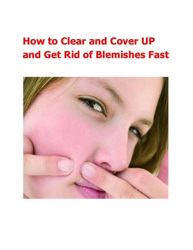 Getting Rid Of Skin Blemishes Naturally