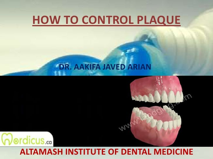HOW TO CONTROL PLAQUE<br />DR. AAKIFA JAVED ARIAN<br />ALTAMASH INSTITUTE OF DENTAL MEDICINE<br />