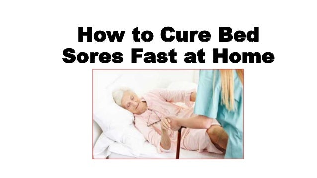 How To Cure Bed Sores Fast At Home