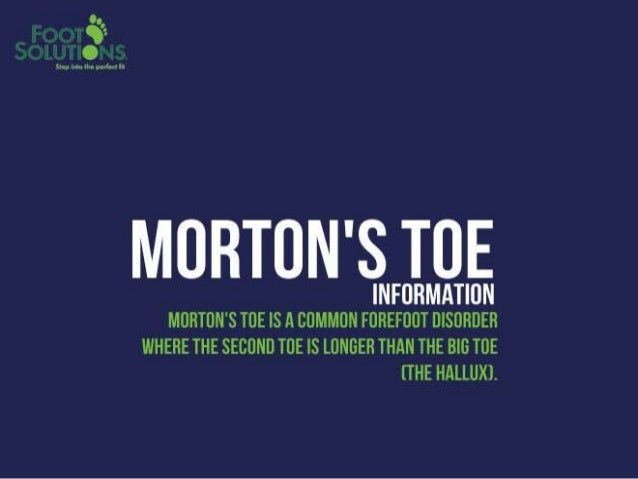 How to deal with morton toes Slide 2