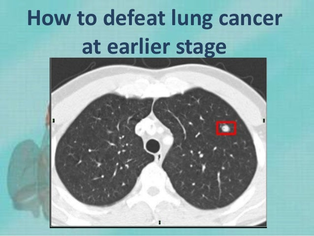 How to defeat lung cancer at earlier stage