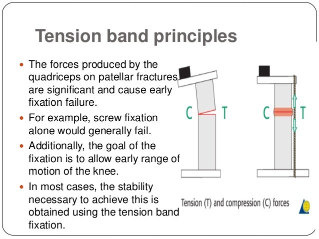 13. ? The anterior tension band ...  sc 1 st  SlideShare : tension band wiring - yogabreezes.com