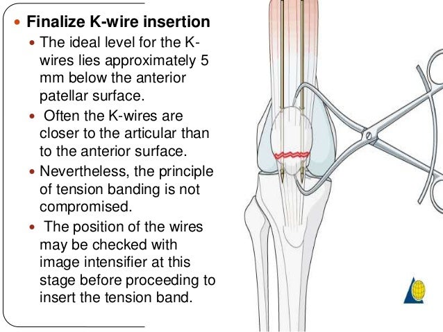 how to do tension band wire rh slideshare net tension band wiring technique tension band wiring technique