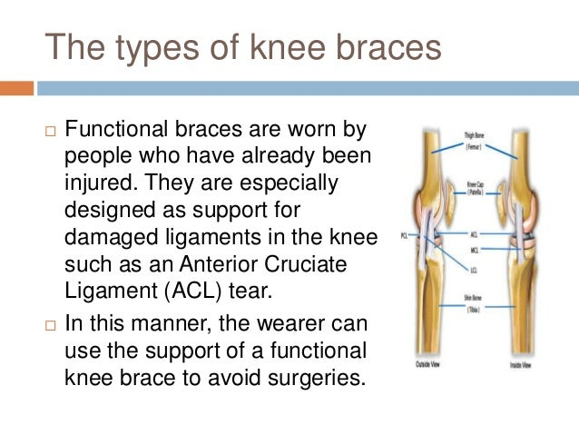 How to find the best knee brace