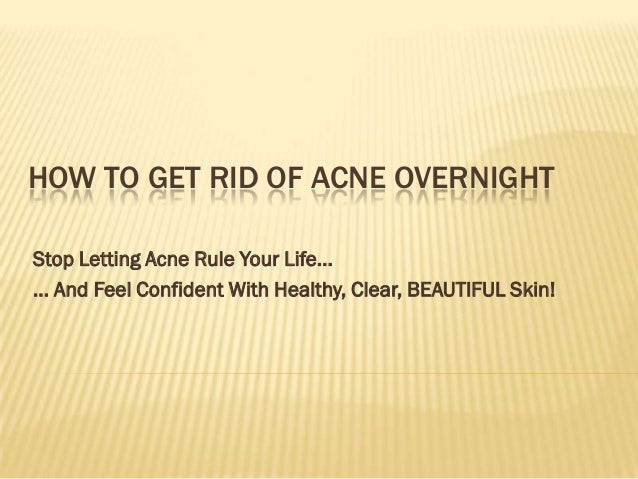 HOW TO GET RID OF ACNE OVERNIGHTStop Letting Acne Rule Your Life...... And Feel Confident With Healthy, Clear, BEAUTIFUL S...