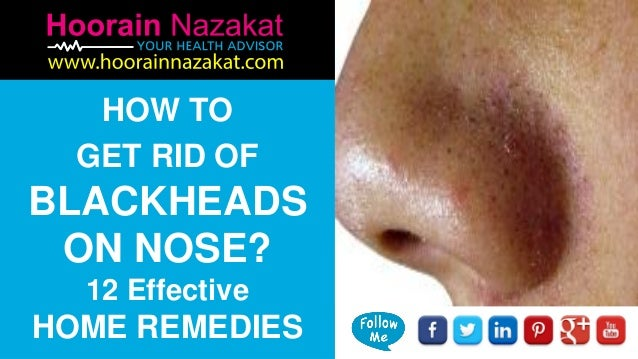 How To Get Rid Of Blackheads On Nose 12 Effective Home Remedies