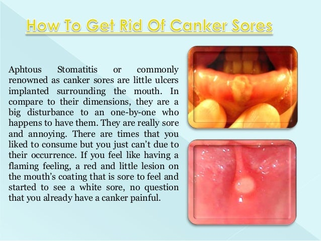 What is a canker sores
