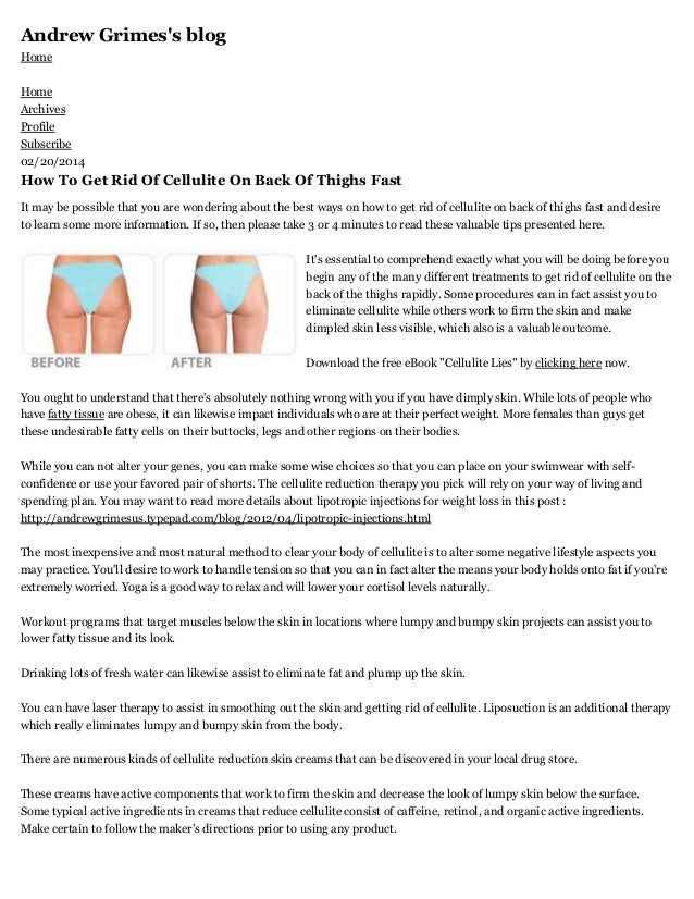 Andrew Grimes's blog Home Home Archives Profile Subscribe 02/20/2014  How To Get Rid Of Cellulite On Back Of Thighs Fast I...