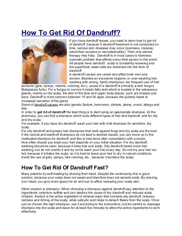 How To Get Rid Of Dandruff?                                    If you have dandruff issues, you need to learn how to get r...