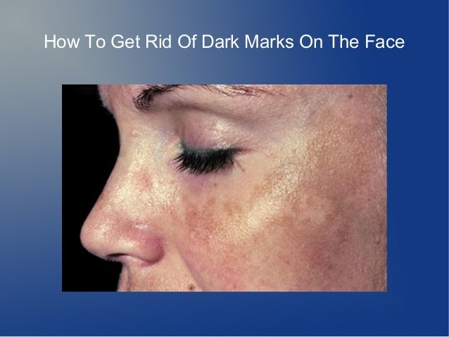How To Get Rid Of Dark Marks On The Face