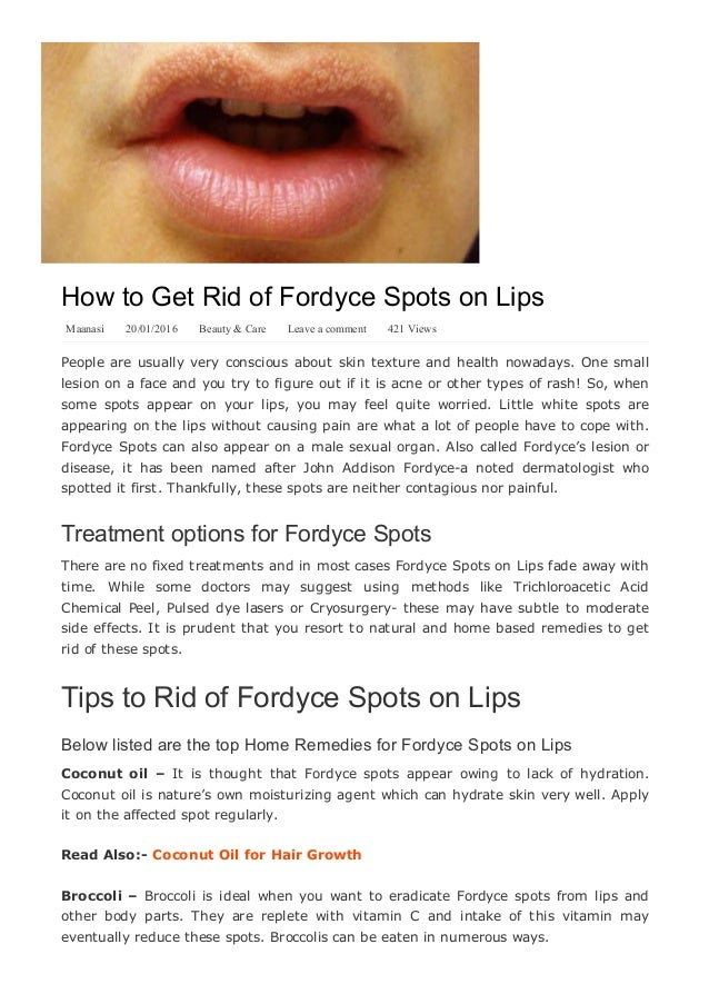 How to get rid of fordyce spots on lips yabibo