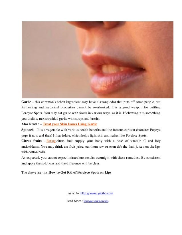 ways to get rid of fordyce spots