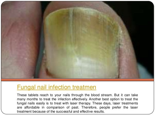 How to get rid of fungal nail
