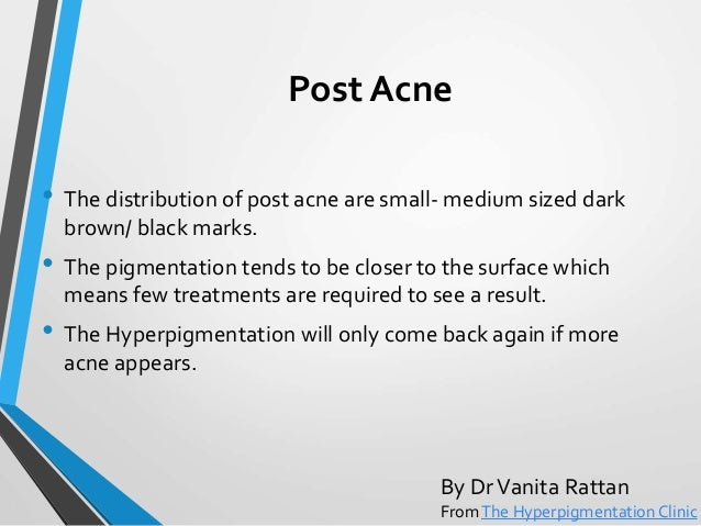 how to avoid pigmentation on face