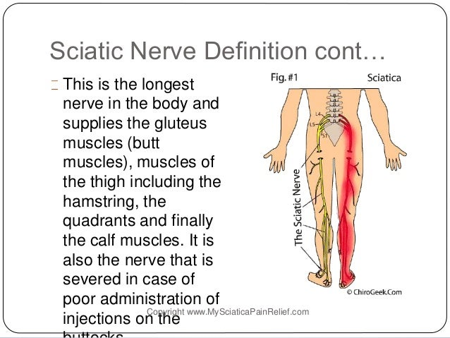how to get rid of pinched sciatic nerve pain & get relief from sciati…, Cephalic Vein