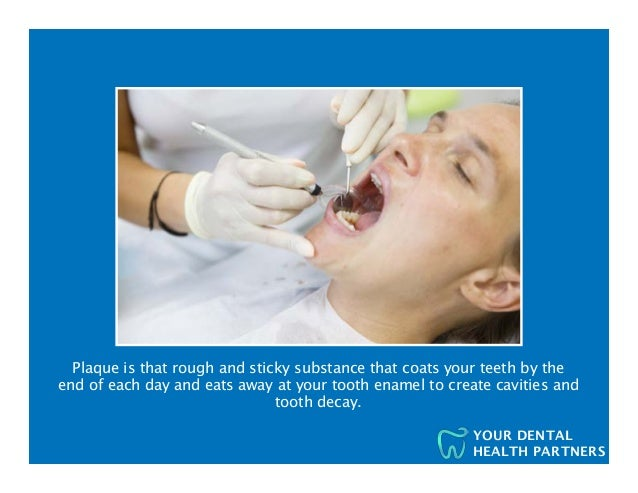 Plaque Removal Ideas for your Teeth Slide 3