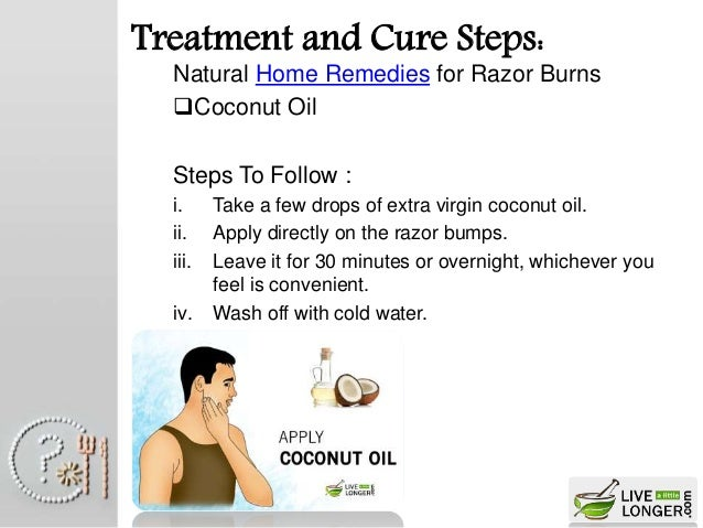 How To Get Rid Of A Burn Overnight