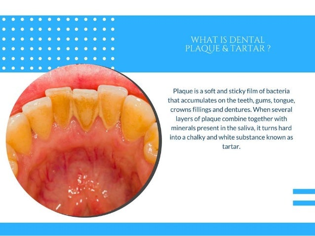 Tips to Get Rid of Tartar and Plaque from Teeth - #PPT Slide 2