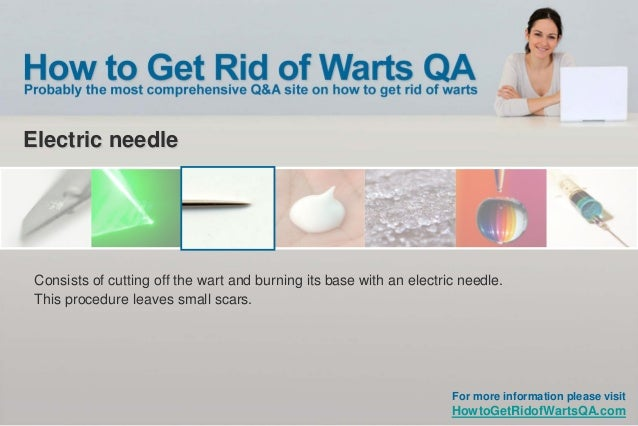 how to get rid of common warts fast