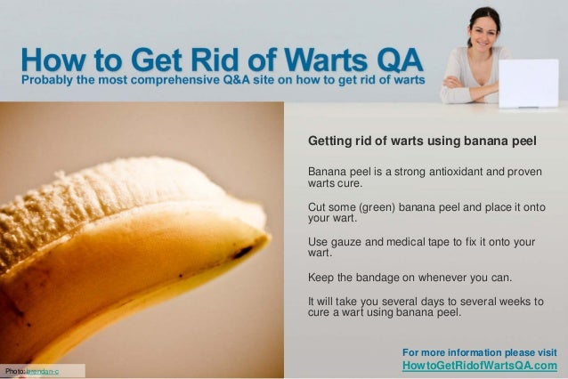 How To Get Rid Of A Genital Wart Naturally