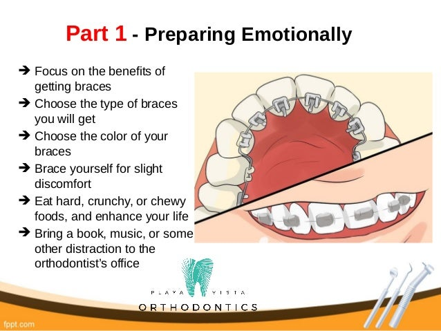How to prepare for getting braces solutioingenieria Gallery