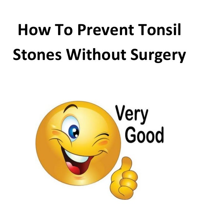 How to prevent tonsil stones without surgery