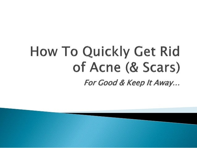 How To Quickly Get Rid Of Acne Scars For Good
