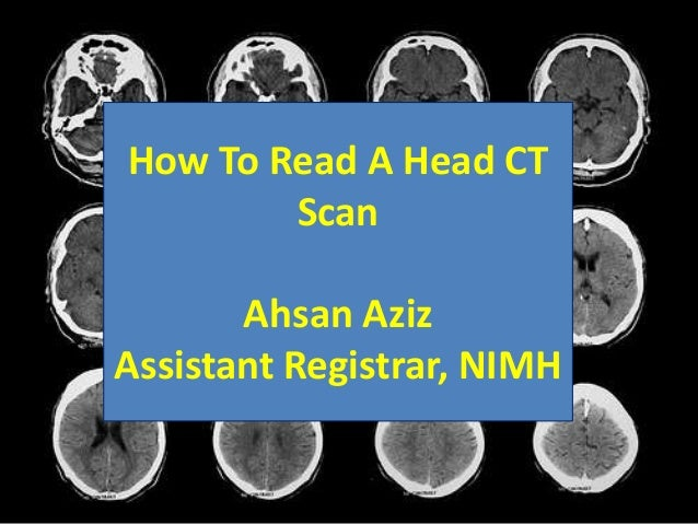 How To Read A Head CT Scan Ahsan Aziz Assistant Registrar, NIMH