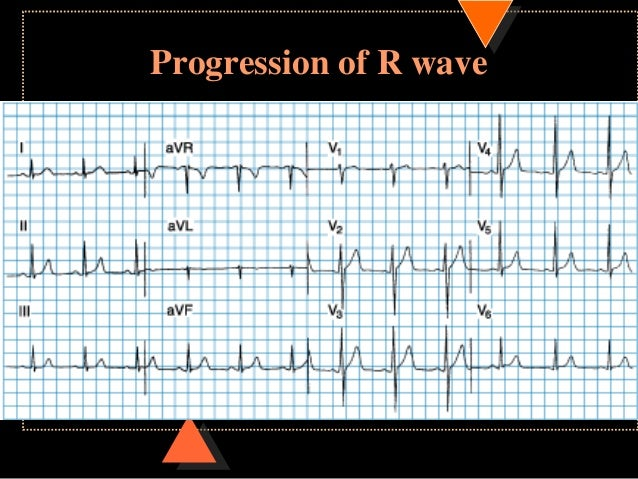 how to read normal ecg