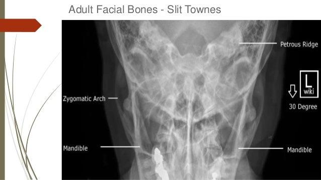 how to read x rays of bones
