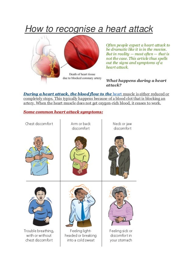 How to recognise a heart attack Often people expect a heart attack to be dramatic like it is in the movies. But in reality...