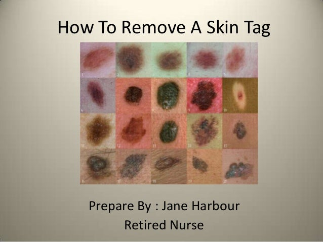 How To Remove A Skin Tag