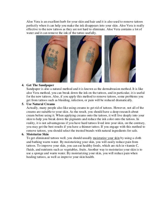 How To Remove A Permanent Tattoo At Home Naturally