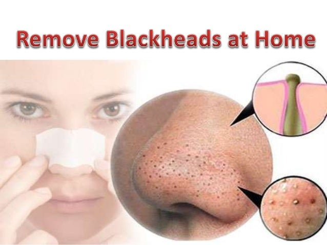 What are blackheads on nose