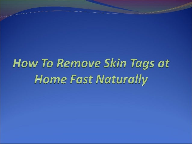 How To Remove Skin Tags at Home Fast Naturally Skin tags can be a significant cause of discomfort and  being embarrassed ...