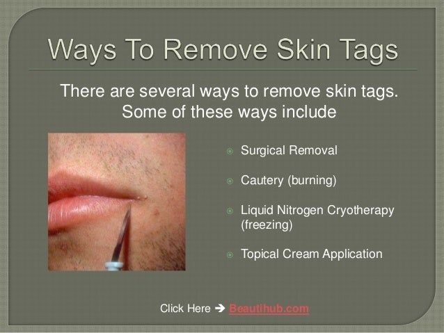 How To Remove Genital Skin Tags Naturally