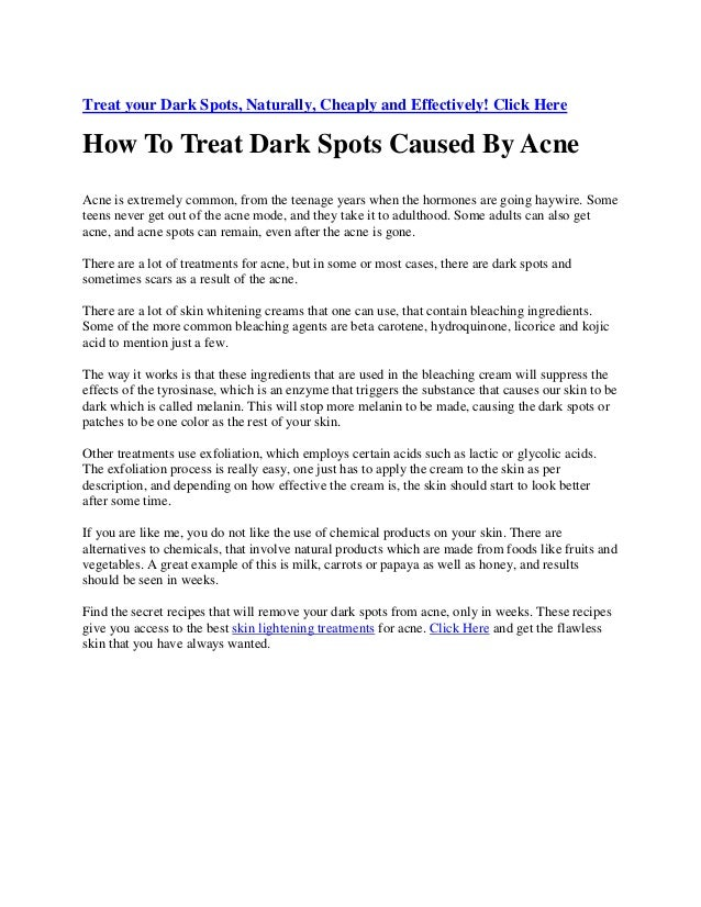 Treat your Dark Spots, Naturally, Cheaply and Effectively! Click Here How To Treat Dark Spots Caused By Acne Acne is extre...