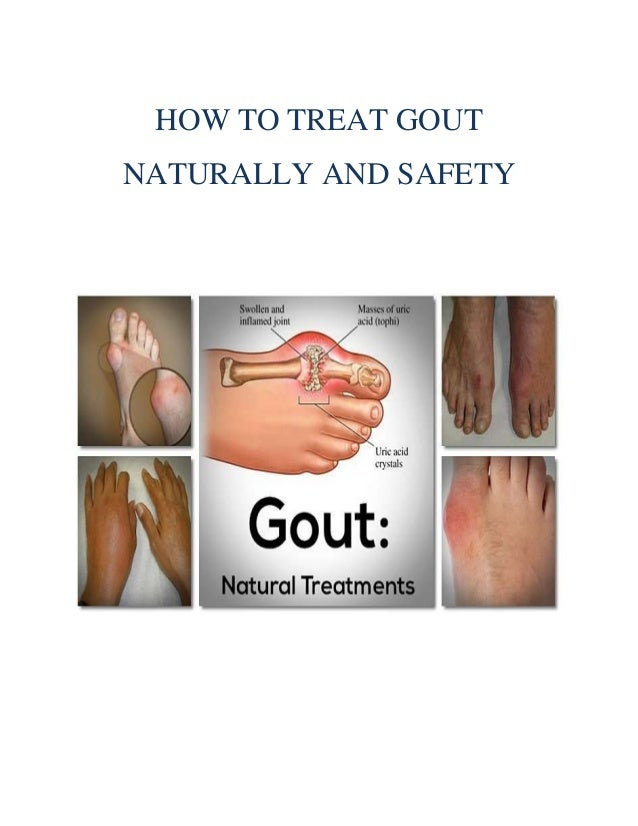 How Can I Treat Gout Naturally