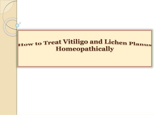 How to Treat Vitiligo and Lichen Planus Homeopathically