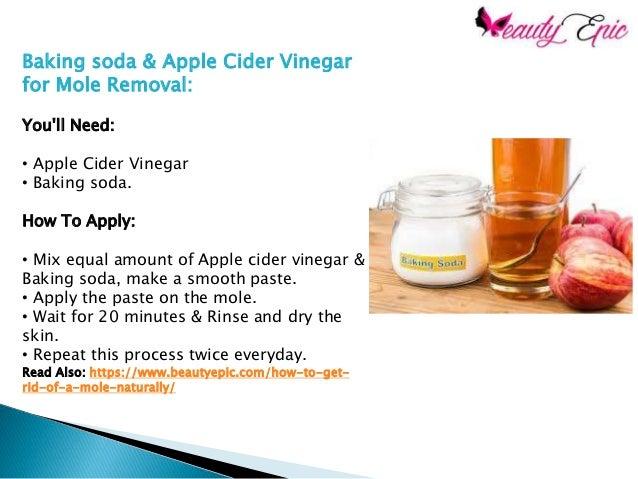 Baking soda and apple cider vinegar paste