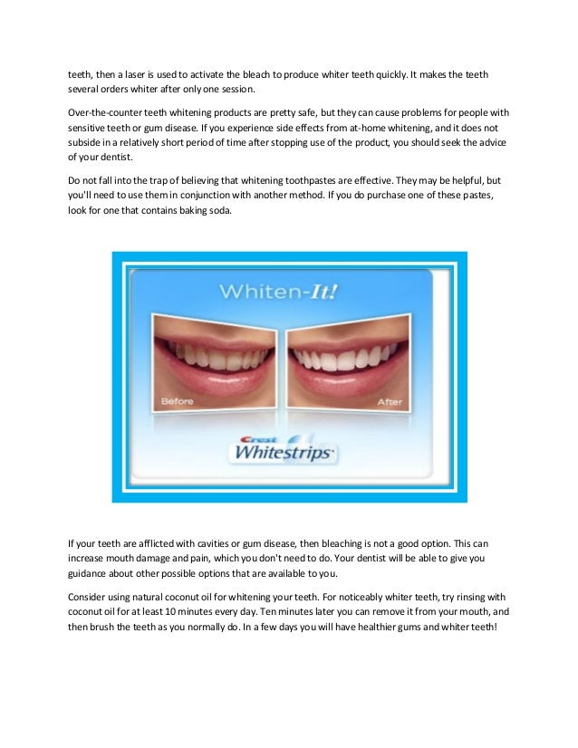 How To Use Crest Whitestrips