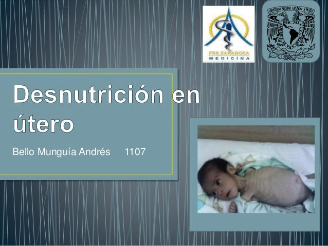 Bello Munguía Andrés 1107