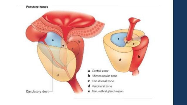 Zonas de la próstata - Salud