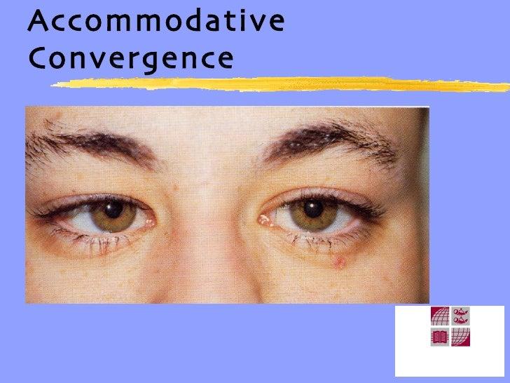Accommodative Convergence