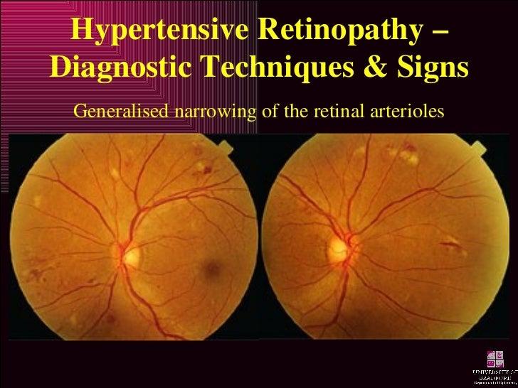 hypertensive retinopathy rh slideshare net Retina Microvascular Change AV Nicking Retina