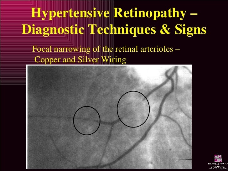 Hypertensive Retinopathy ...  sc 1 st  SlideShare : hypertensive retinopathy silver wiring - yogabreezes.com