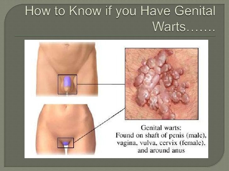 do i have genital warts