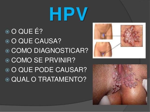 HPV O  QUE É?  O QUE CAUSA?  COMO DIAGNOSTICAR?  COMO SE PRVINIR?  O QUE PODE CAUSAR?  QUAL O TRATAMENTO?
