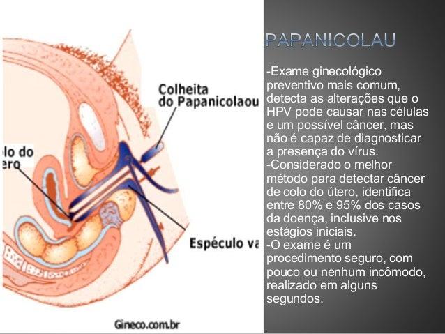 Papiloma colonoscopia - hpv.iubescstudentia.ro